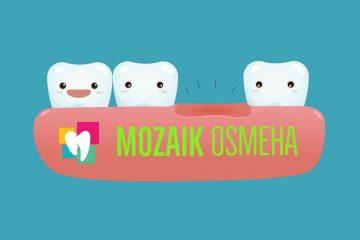 Stomatoloska-ordinacija-Mozaik-Osmeha-Bulevar-Kralja-Aleksandra-117-kada-izgubimo-zub
