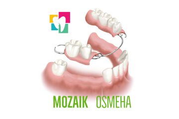 Stomatoloska-ordinacija-Mozaik-Osmeha-Bulevar-Kralja-Aleksandra-117-proteze-krunica-most