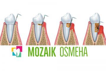 Stomatoloska-ordinacija-Mozaik-Osmeha-Parodontopatija-parodentoza-faze-parodontopatije