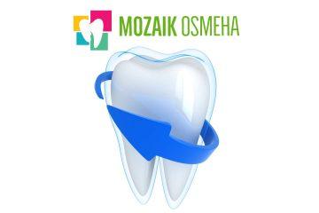 dejstvo-fluora-na-zube-fluorisanje-zuba-preventivne-mere